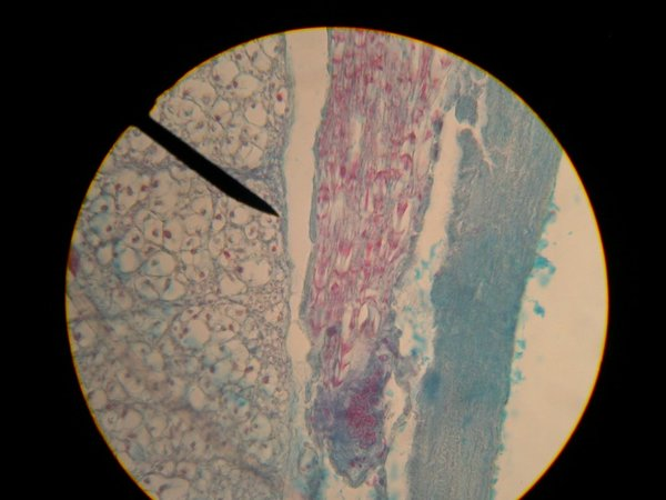 Spinal Cord Cross Section Slide Spinal-cord_slide 11-2 Hpo