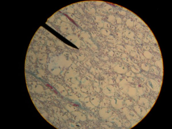 Spinal Cord Cross Section Slide Spinal-cord_slide 11 Hpo